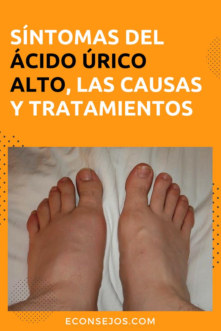 sintomas de acido urico alto en la sangre