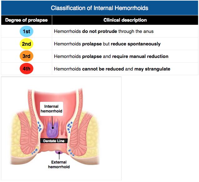 Classification Of Internal Hemorrhoids Internalhemorrhoids Hemorrhoids Exam Exam Review