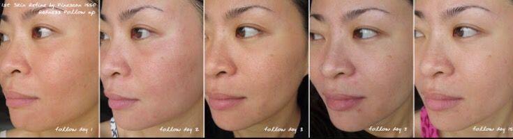 Tratamiento de cicatrices por acné