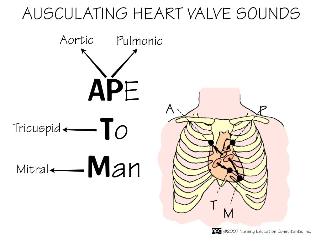 Auscultation of the heart: listening points, methods and results 44