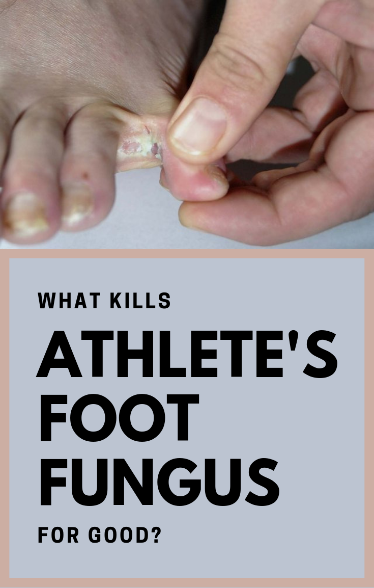 What Kills Athlete S Foot Fungus For Good Beauty Area Foot Fungus Foot Fungus Remedies Athletes Foot