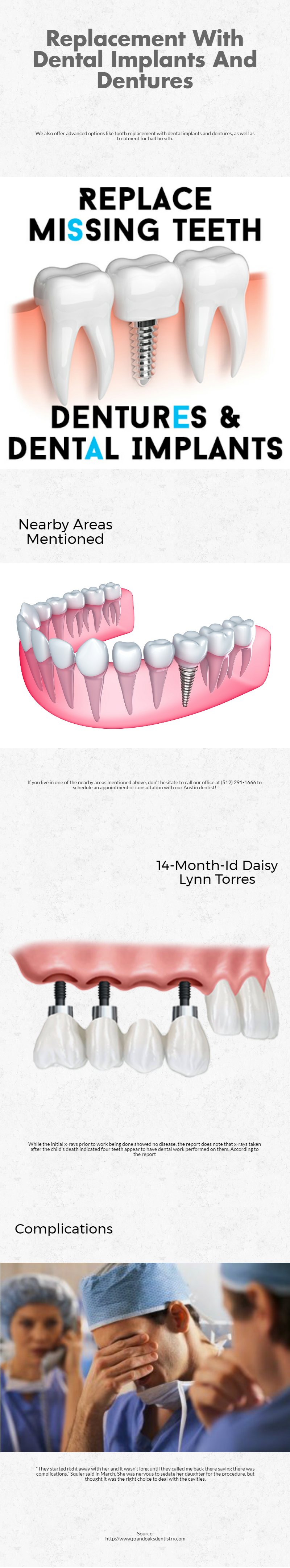 Replacement With Dental Implants And Dentures We have a wide variety