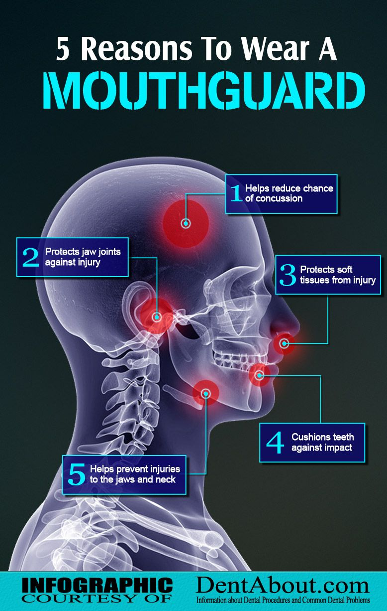 5 Reasons To Wear A Mouthguard Infographic (With images