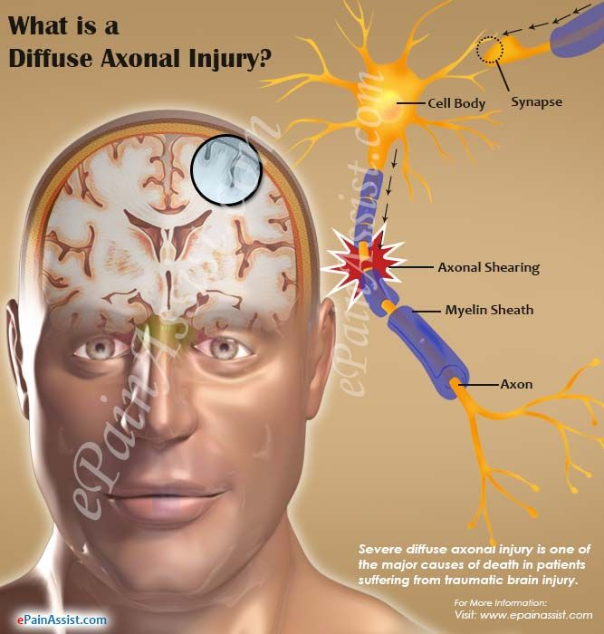 What is a Diffuse Axonal Injury | Brain anatomy and ...