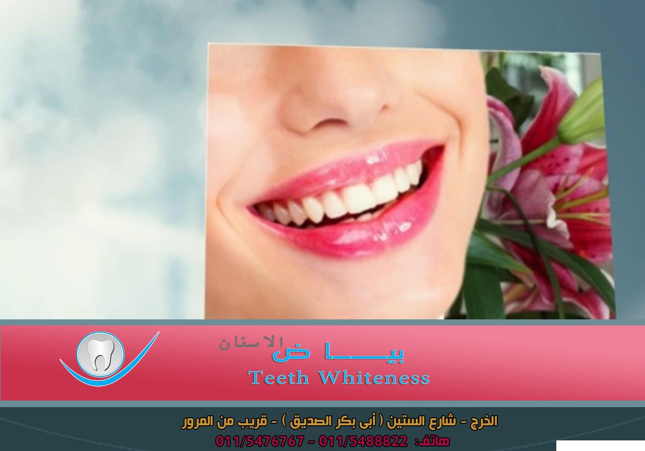 تقويم الأسنان لدينا علاج تقويم الاسنان بإشراف اخصائى تقويم اسنان تقويم الاسنان العادى تقويم الاسنان الملون تقويم الاسنان الوظيفى تقوي Teeth