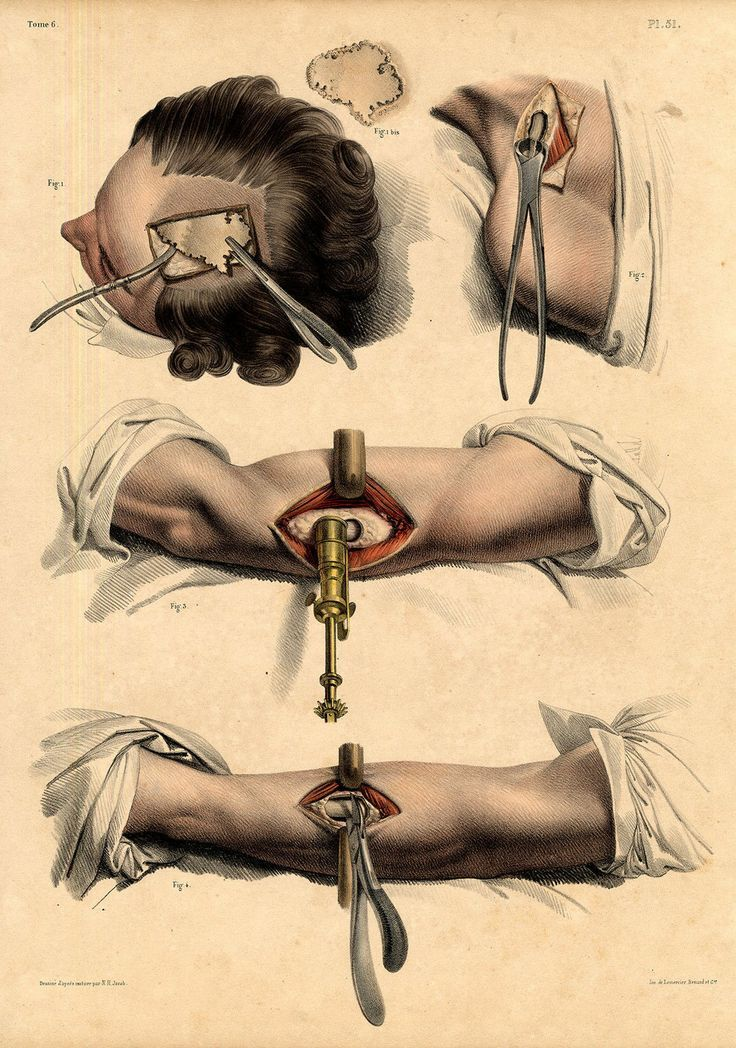 Illustrations Of The Human Body Early Surgery Google Search