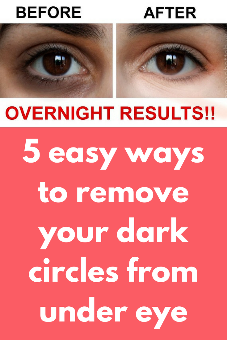5 Easy Ways To Remove Your Dark Circles From Under Eye Today I Will Share 5 Easy Ways To Remove Your Dark Circ Dark Circles Almond Oil Benefits Almond Oil Face