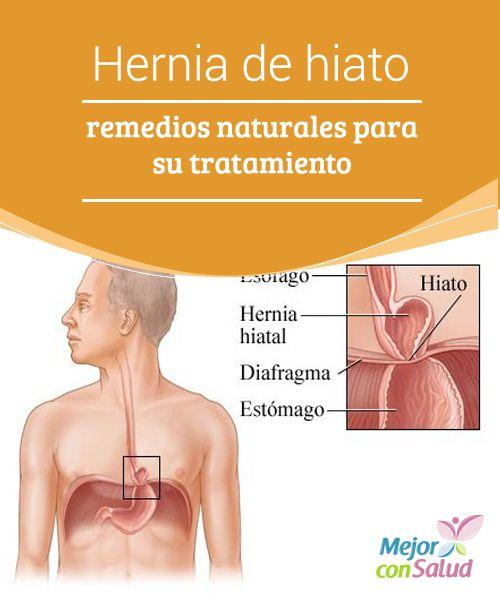 Hernia De Hiato Remedios Naturales Para Su Tratamiento Con Imagenes Hernia De Hiato Remedios Naturales Esofago De Barret