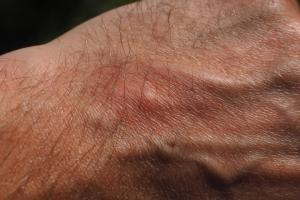 ¿cómo se cura la sarna en la piel humana