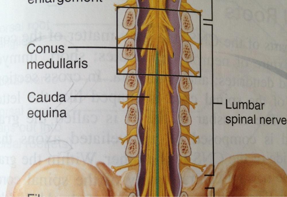 conus medullaris anatomical brain - Google Search | Anatomy (Brain ...
