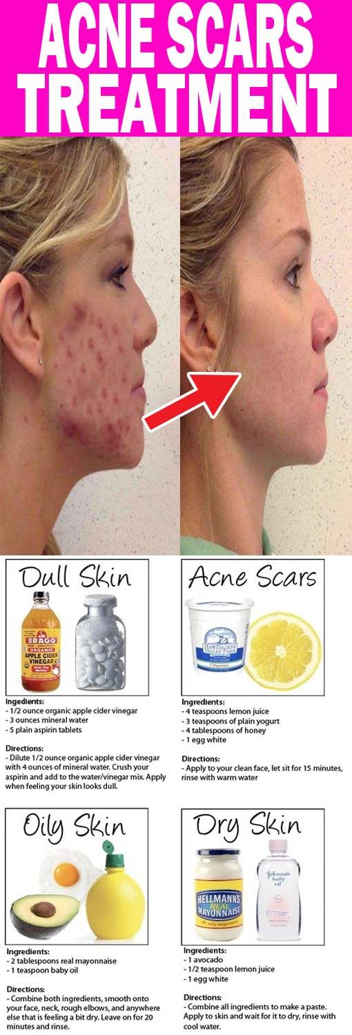 69f4bbba01cd23f57afe44f92582a12a - How To Get Rid Of Pimples And Pores Fast