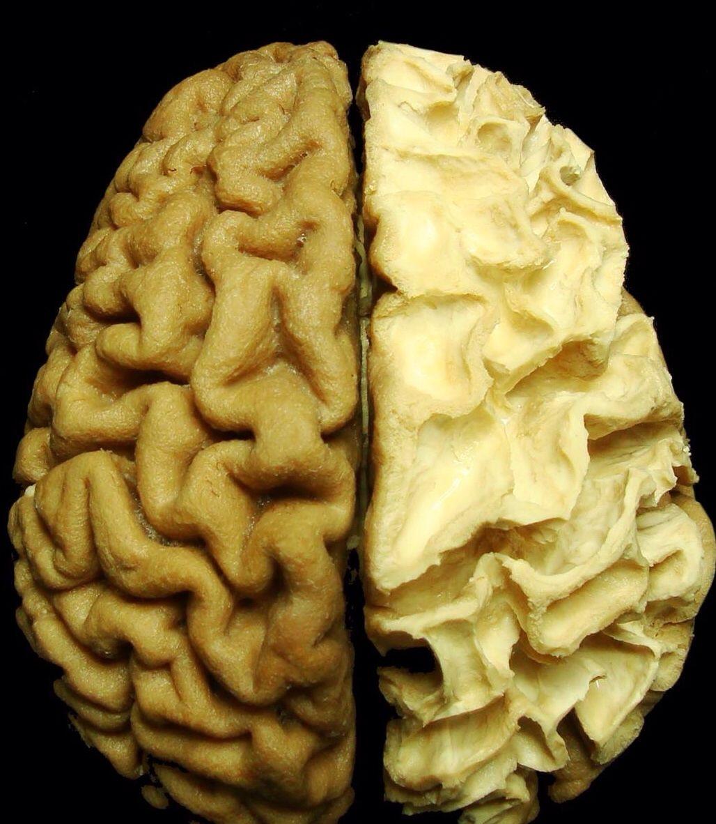 Cerebral cortex and corona radiata   WONDERLUST.   Pinterest ...