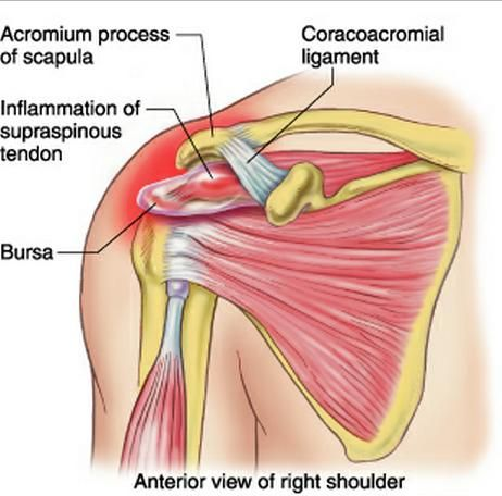 Rotator Cuff Syndrome Rotator Cuff Stuff Pinterest Rotator