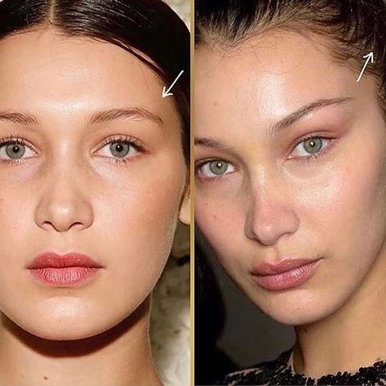 how long for botox to work around eyes