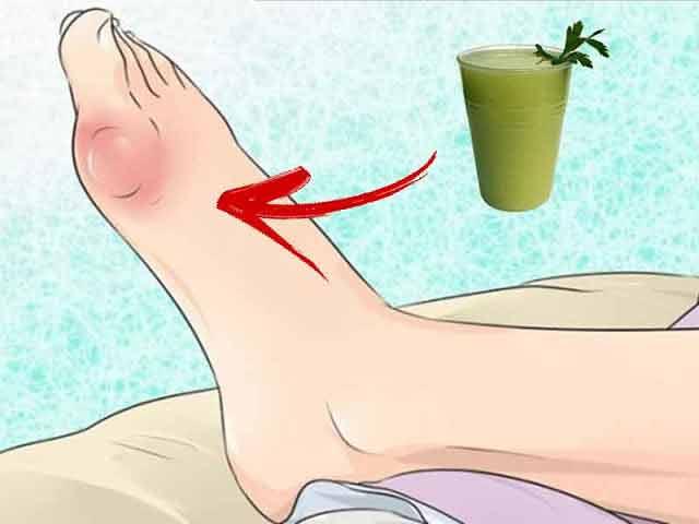 Tratamentul varicelor remedii populare
