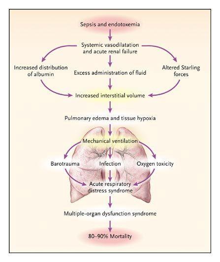 Acute Renal Failure And Sepsis ʵìœ¡