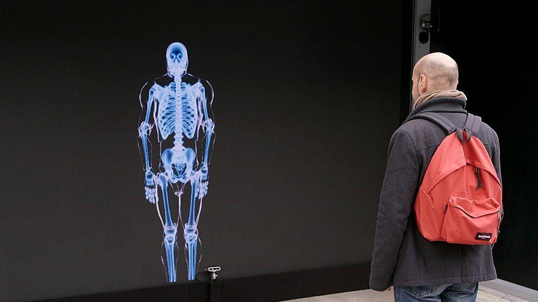 Bones Vs Steel. Who wins? SAAQ shows who does in a bone