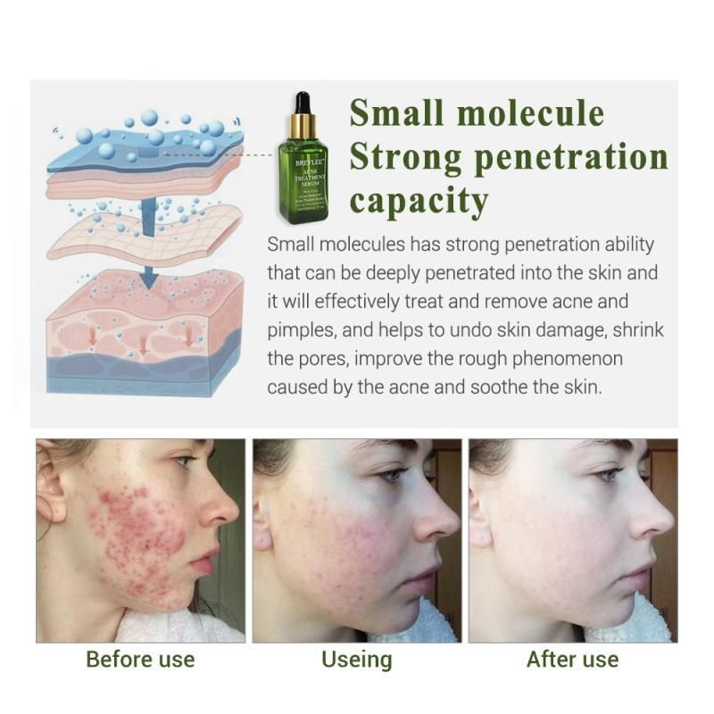 Pin On Acne Skin Care