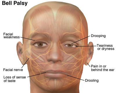 trapped facial nerve