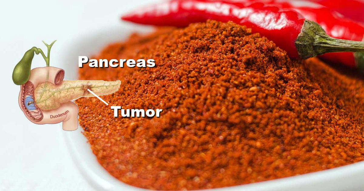 Capsaicin Stops Heart Attacks And Destroys Cancer Cells