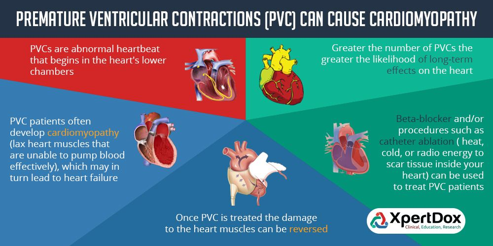 Did you know that Premature Ventricular Contractions (Pvc ...