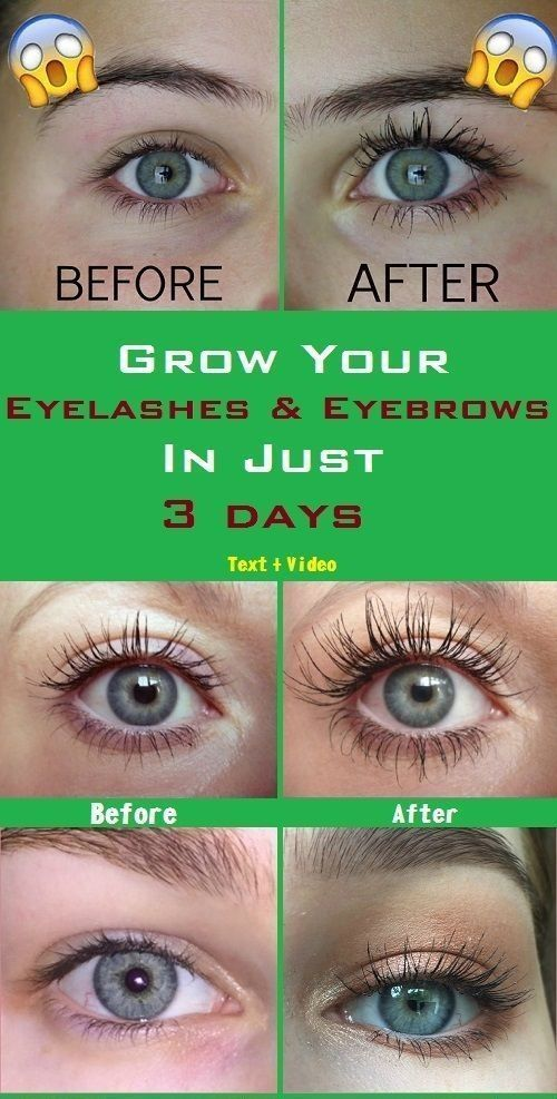 Castor Oil Serum To Get Long Beautiful Eyebrows And ...