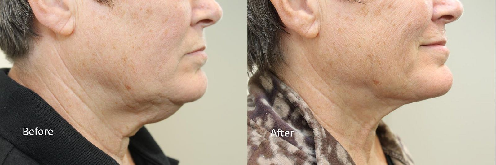 https://flic.kr/p/yUXtmj | LipoLift Neck LA5 www.drdarm.com - LipoLift neck before and after pictures. Results may vary. LipoLift is the trademarked name of Dr. Darm's signature laser-assisted liposuction procedure (laser lipolysis) that permanently removes fat from the body.