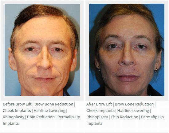 Tampa facial implants