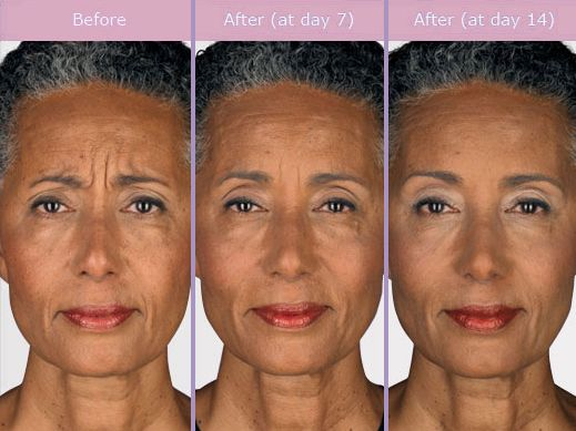 Botox Sprinkles help you to look as if you're completely ...