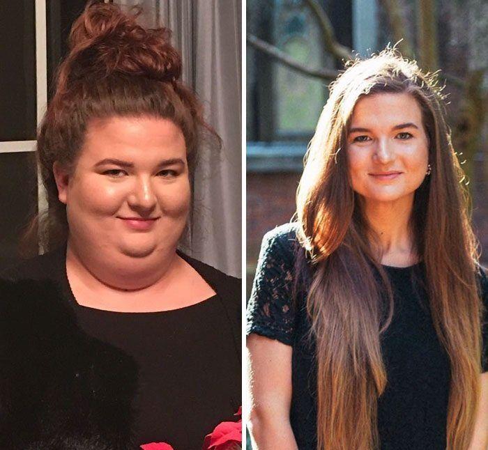 Antes y despues de bajar de peso hombres en