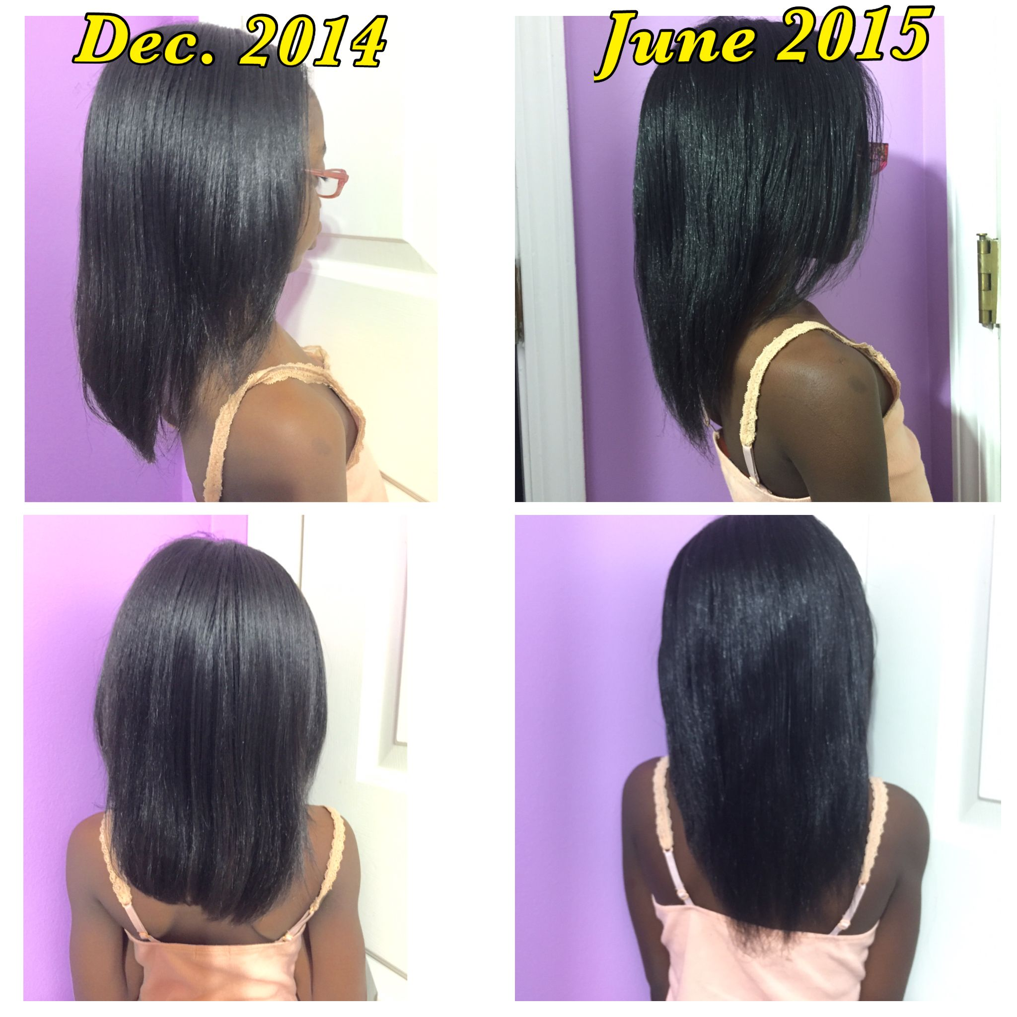 Hair growth after hair has been braided 6 months in ...