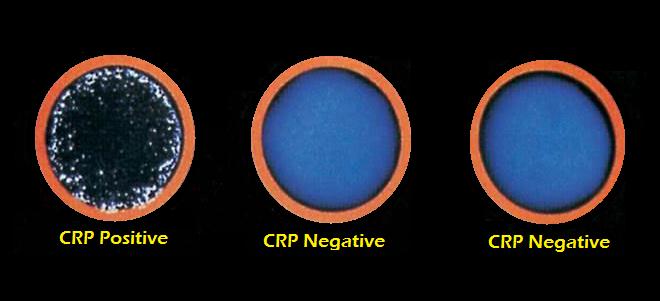 ما هو تحليل Crp وأنواعه وأسبابه موقع حصري C Reactive Protein Laboratory Science No Response