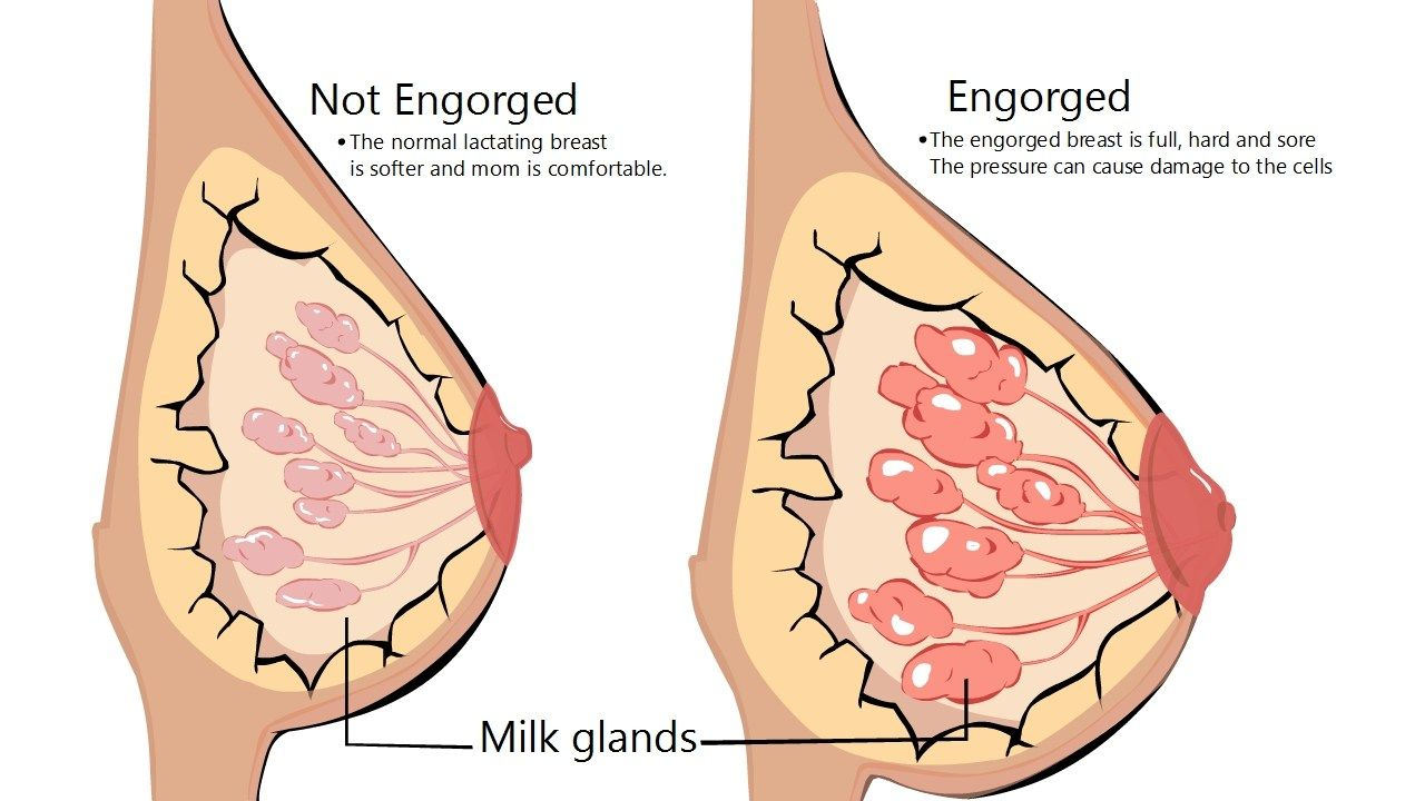 Image result for breast engorgement images