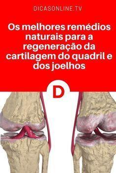 remediu articular artritic)
