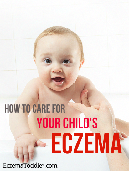 what causes babies to have eczema