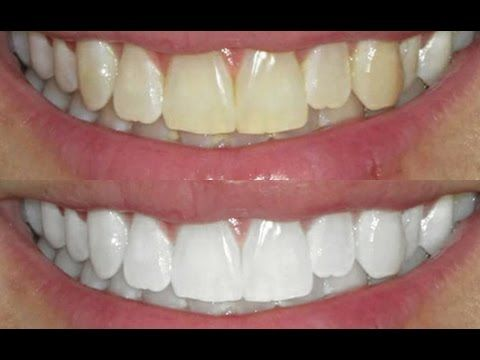 Clareamento Dental Com Violeta Genciana Sera Que Funciona