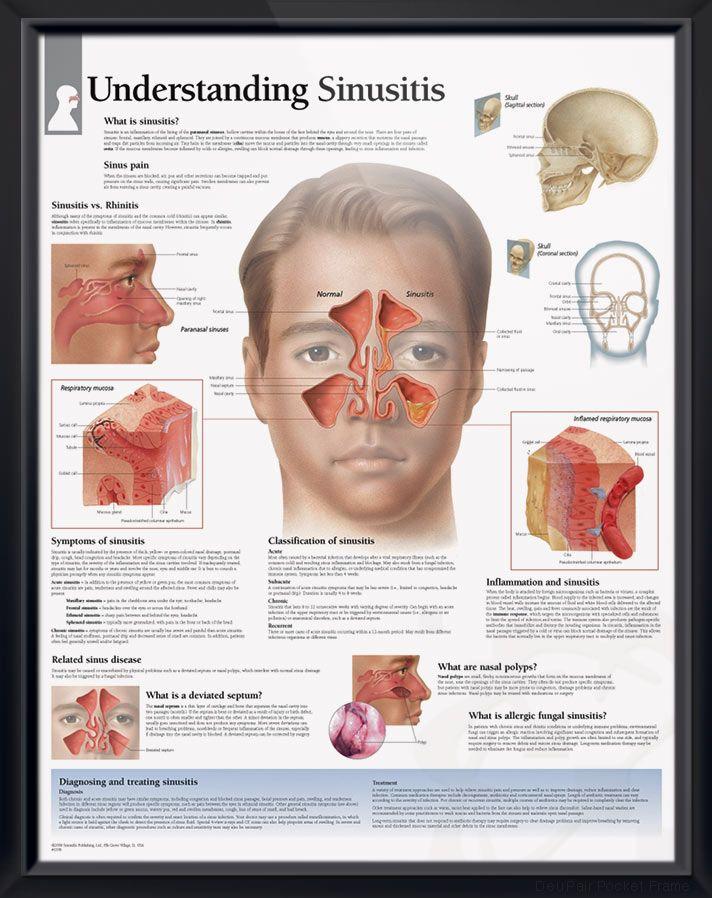 Understanding Sinusitis Chart 22x28 | Septum, Anatomy and Chart