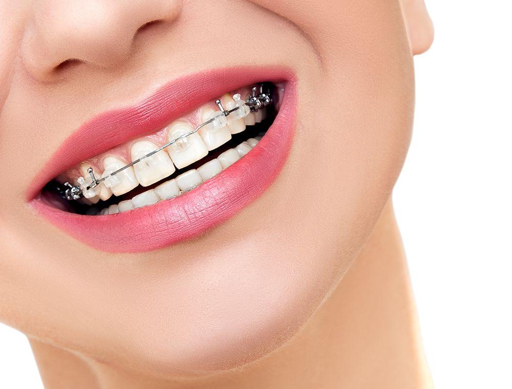 Orthodontics Near Me Orthodontics Orthodontic Treatment Orthodontist