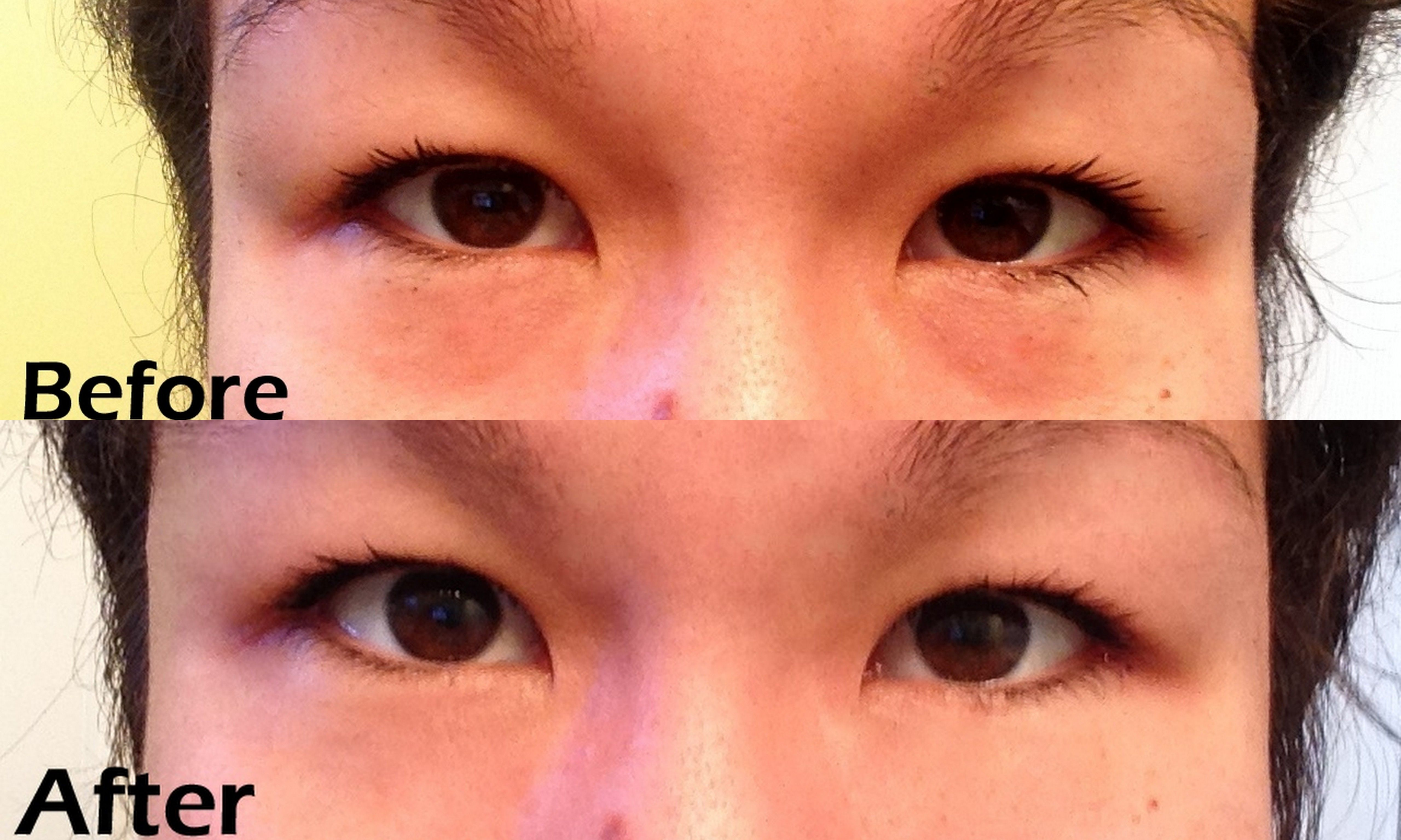 6a34042f250b8ef6a66a5f3133c03b4c - How To Get Rid Of Black Eyes From No Sleep