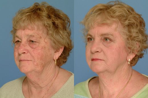 Laser resurfacing before and after | Beauty Before & After
