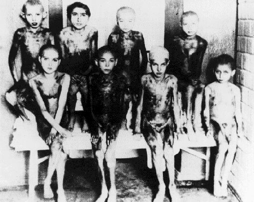This picture shows children who have been subjected to medical experiments at Auschwitz.  Note how not a single one is crying.  The stoic dignity with which the Jews of the Holocaust went to their deaths rightly shamed their murderers.
