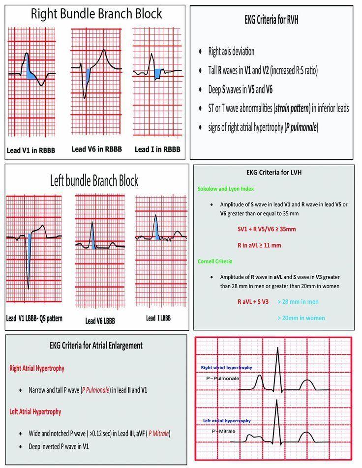 12 Lead EKG Pocket Card: APRN World: 9781941004067: http://Amazon ...