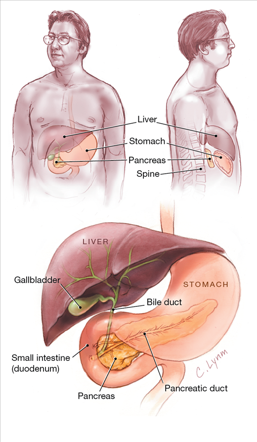 Pancreatitis In 2020 Cancer Fighting Cancer Fighting Foods Cancer