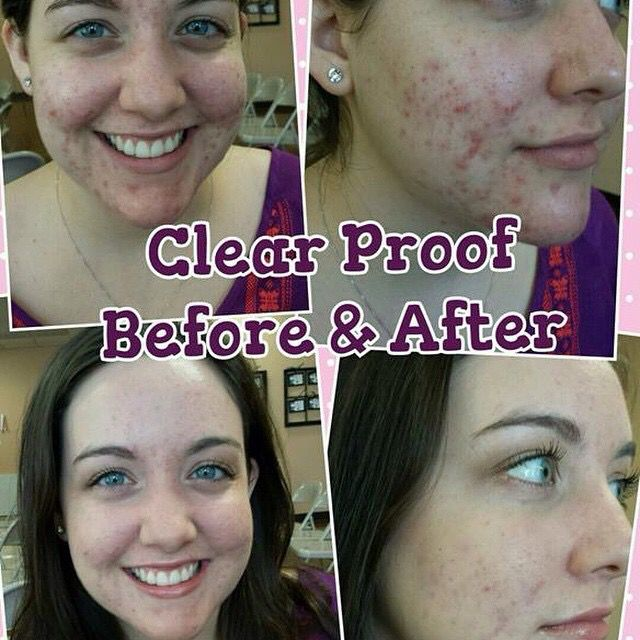 Clear Skin With Clear Proof Mary Kay Maquiagem Mary Kay