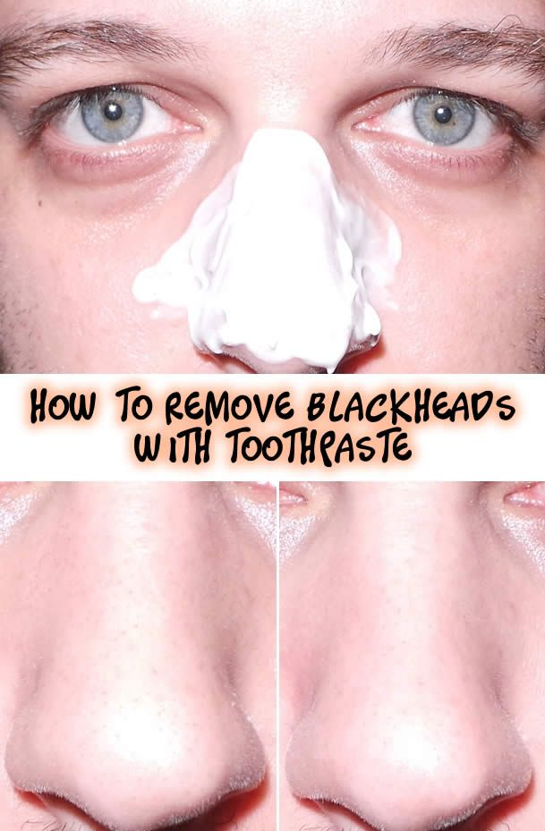 How to Remove Blackheads with Toothpaste   Hair & Beauty