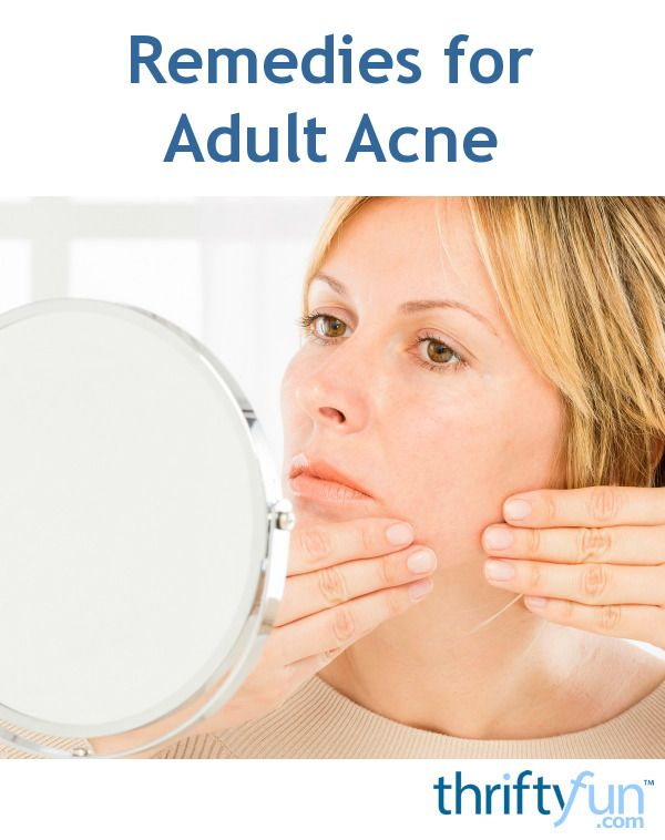 Remedies for Adult Acne