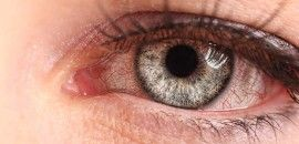 10 Proven Home Remedies For Eye Infections Natural Pink Eye Remedy Eye Stye Remedies Eye Infections
