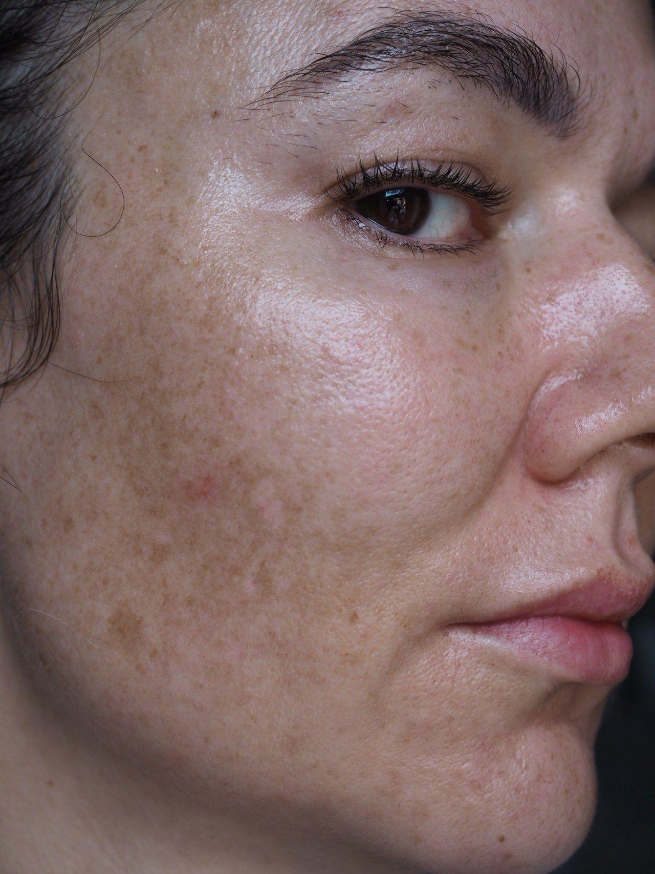 Pin On Skin