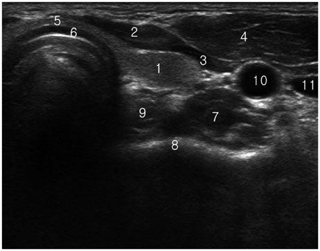 transverse scan of left lower thyroid region 1 left lobe