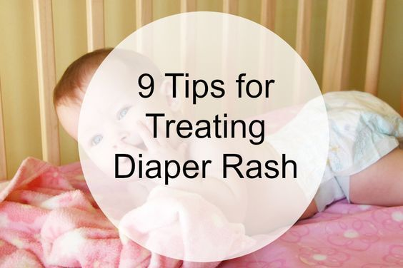 Diaper Rash Treatments